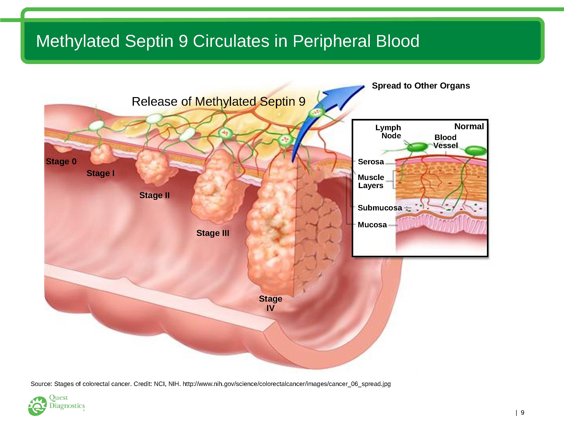 Cancer colorectal septin 9. Septin9 | Clinica de Age Management