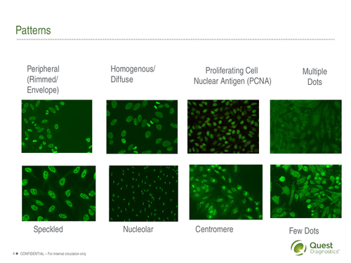 ANA The Misunderstood Lab Test Simple Ana Nucleolar Pattern